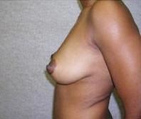 Side View Before Breast Enhancement