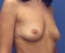 Before Breast Enhancement Oblique View