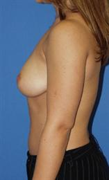 Side View Before Breast Implants