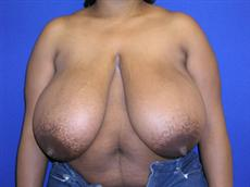 Front View Before Breast Reduction