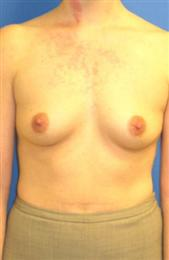 Front View Before Breast Enhancement