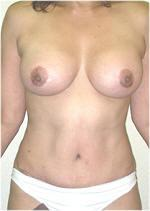 Front View After Tummy Tuck and Breast Implants
