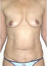 Front View Before Tummy Tuck and Breast Implants