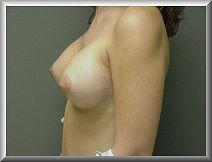 Left Side View After Breast Enhancement