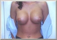 After Saline Breast Implants Front View