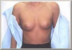 Before Saline Breast Implants Front View
