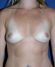 Front View Before Breast Implants
