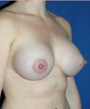 After Breast Augmentation Oblique View