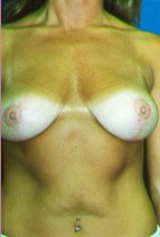 Front View After Breast Mastopexy