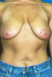Front View Before Breast Mastopexy