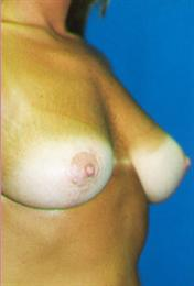 After Breast Lift Oblique View