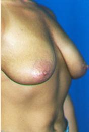 Before Breast Lift Oblique View