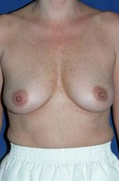 Front View After Inverted Nipple Correction