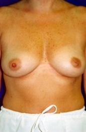 Front View Before Inverted Nipple Correction