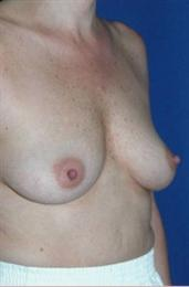 After Breast Reconstruction Oblique View