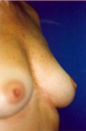 Before Breast Reconstruction Oblique View