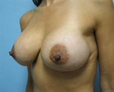 Left Oblique View After Breast Implants