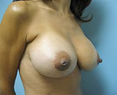 After Breast Augmentation Right Oblique View
