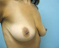 Before Breast Augmentation Right Oblique View