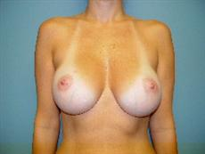 Breast Implants in Columbia, South