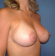 Mt pleasant breast implants