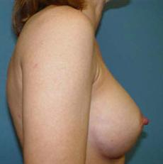 Breast Augmentation Columbia, Breast