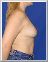 After Breast Reduction Side View