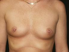 Saline breast implants indiana question thank