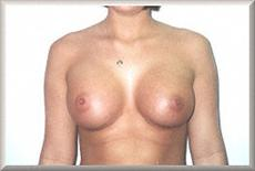 Front View After Breast Enlargement