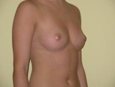 Philadelphia breast enhancement gallery