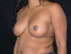 Oblique After Breast Implants