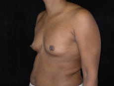 Oblique Before Breast Implants