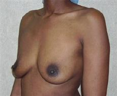 Oblique View Before Breast Augmentation