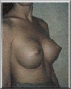 Oblique View After Breast Implants