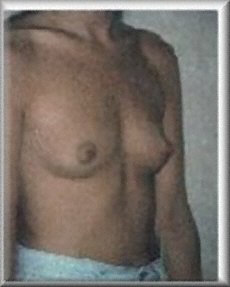 Oblique View Before Breast Implants