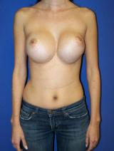 Front View Before Breast Augmentation Revision