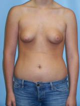 Pre-breast augmentation revision - implant malposition