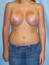 Post breast augmentation revision - breast implant malposition
