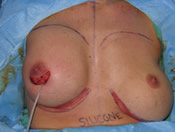 Surgery for breast malposition