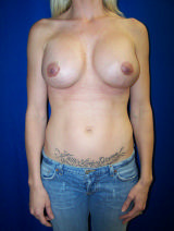Breast Implant Malposition - post augmentation revision