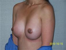 Oblique After Breast Augmentation