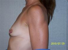 Side Before Breast Augmentation