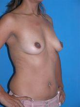 Oblique Before Breast Augmentation