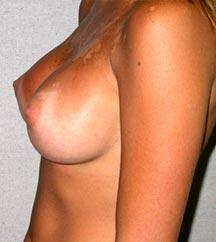 Breast reduction philadelphia