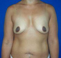 Front Before Breast Augmentation