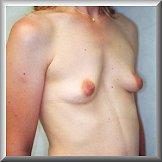 Right Oblique View Before Breast Implants
