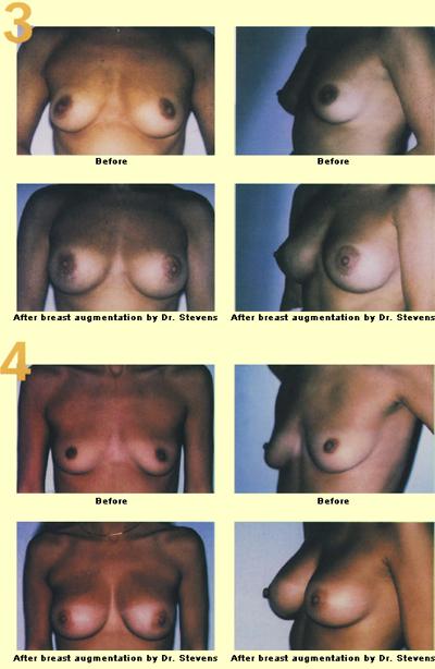 different looking boob jobs