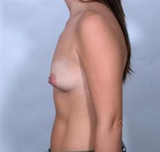 Side View Before Breast Enlargement