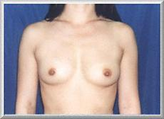 Front View Before Breast Enlargement