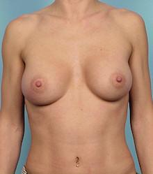 Front - After Silicone Gel Breast Implants